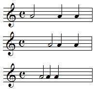 espaces entre les notes de musique